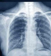 The First X-Ray Photograph of Human Body